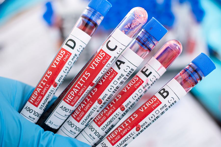 Blood vials each containing a different strain of the hepatitis virus