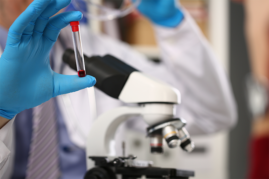 Laboratory testing blood to determine which type of hepatitis needs to be treated